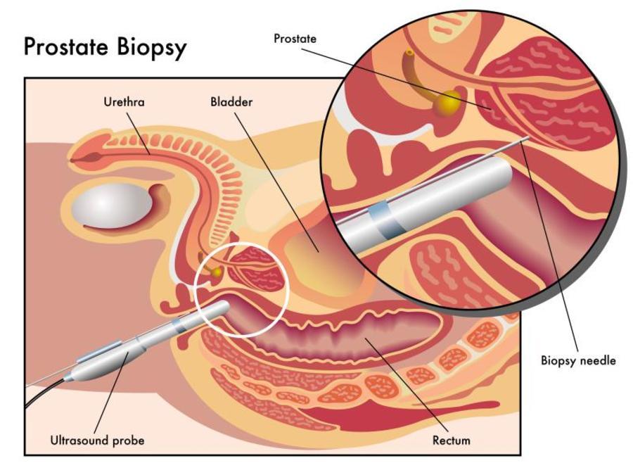 prostate biopsy diagram.