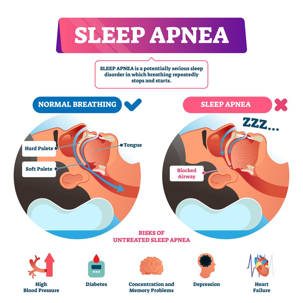 Sleep apnea diagram.