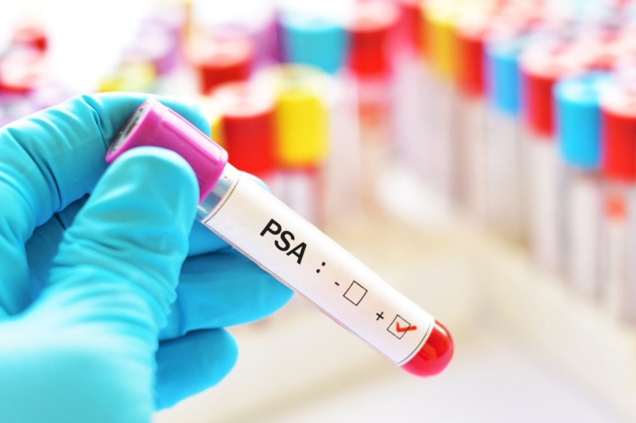 PSA test is a simple blood exam