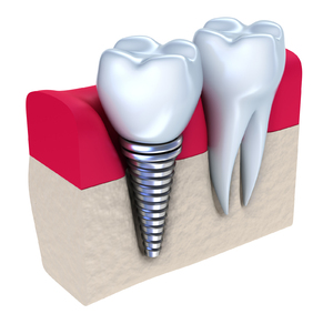 Illustration of a dental implant.