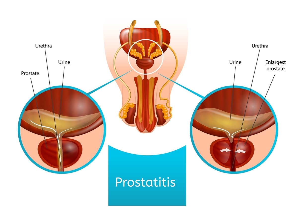 Diagram of a prostate with prostatitis.