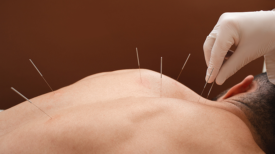 Acupuncture is one of the best-known TCM treatments for ED